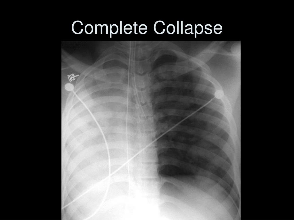 Complete Collapse