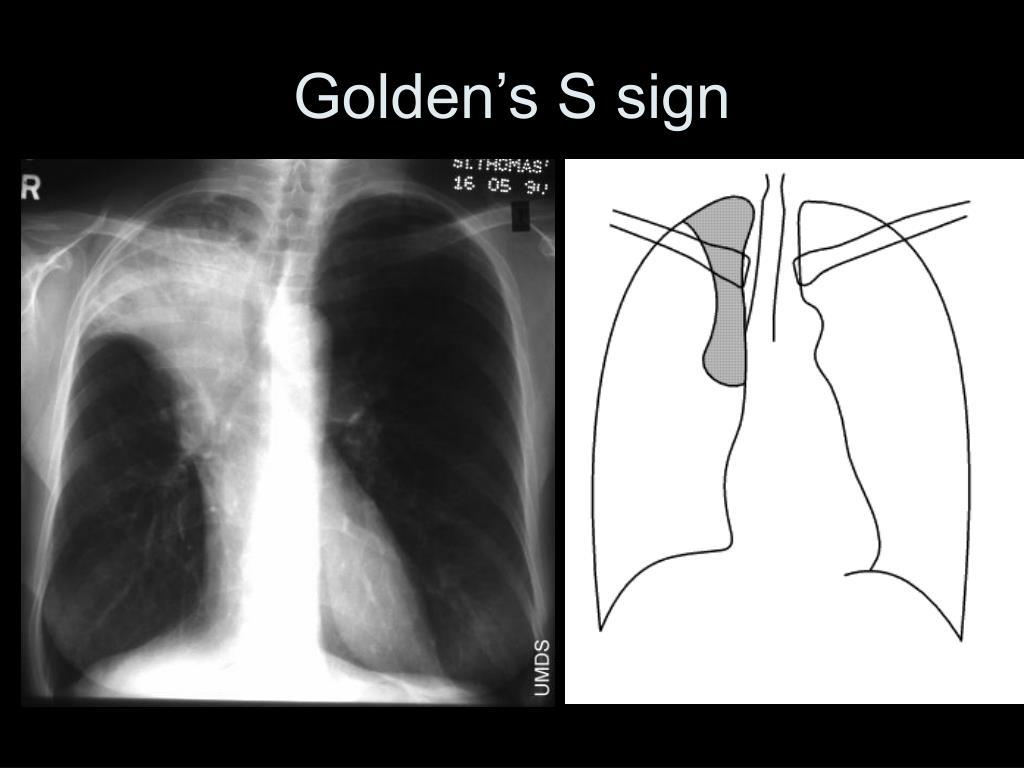 Golden's S sign