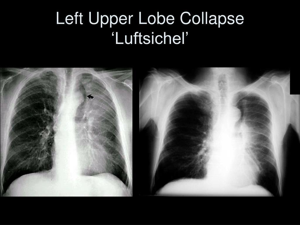 Left Upper Lobe Collapse