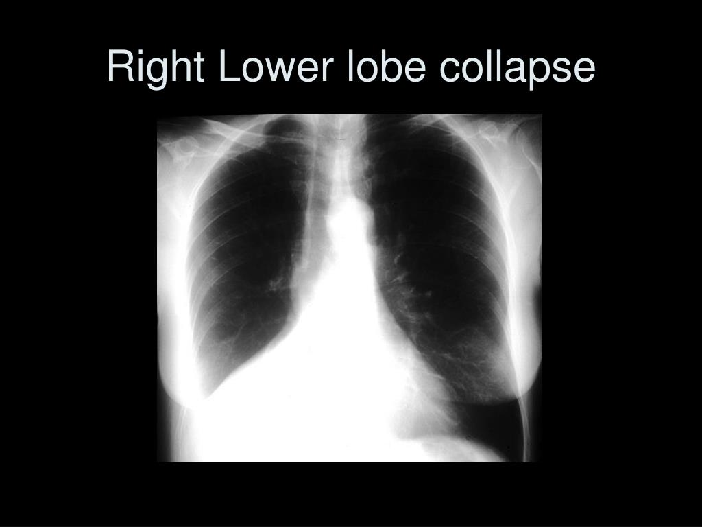 Right Lower lobe collapse