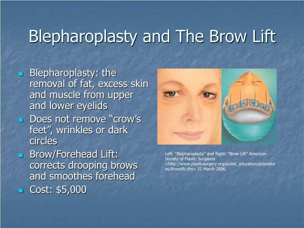 Blepharoplasty and The Brow Lift