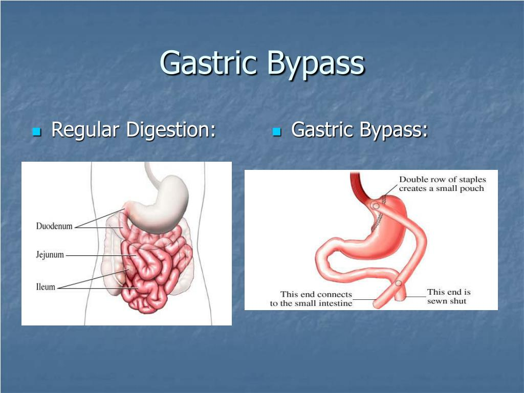 Regular Digestion: