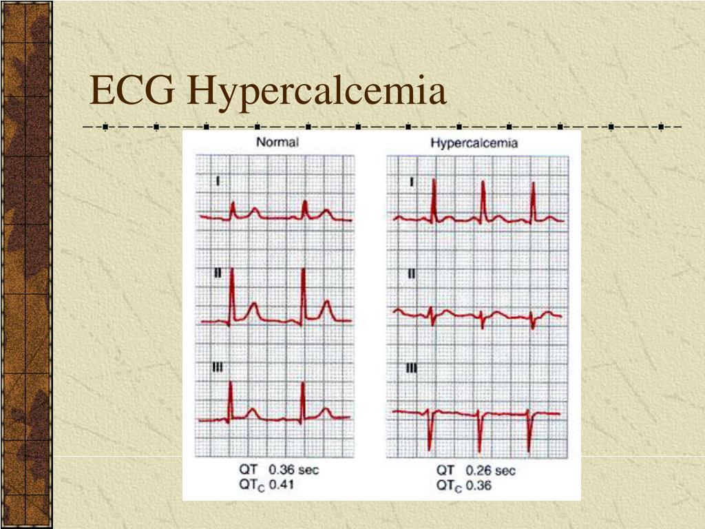ECG Hypercalcemia