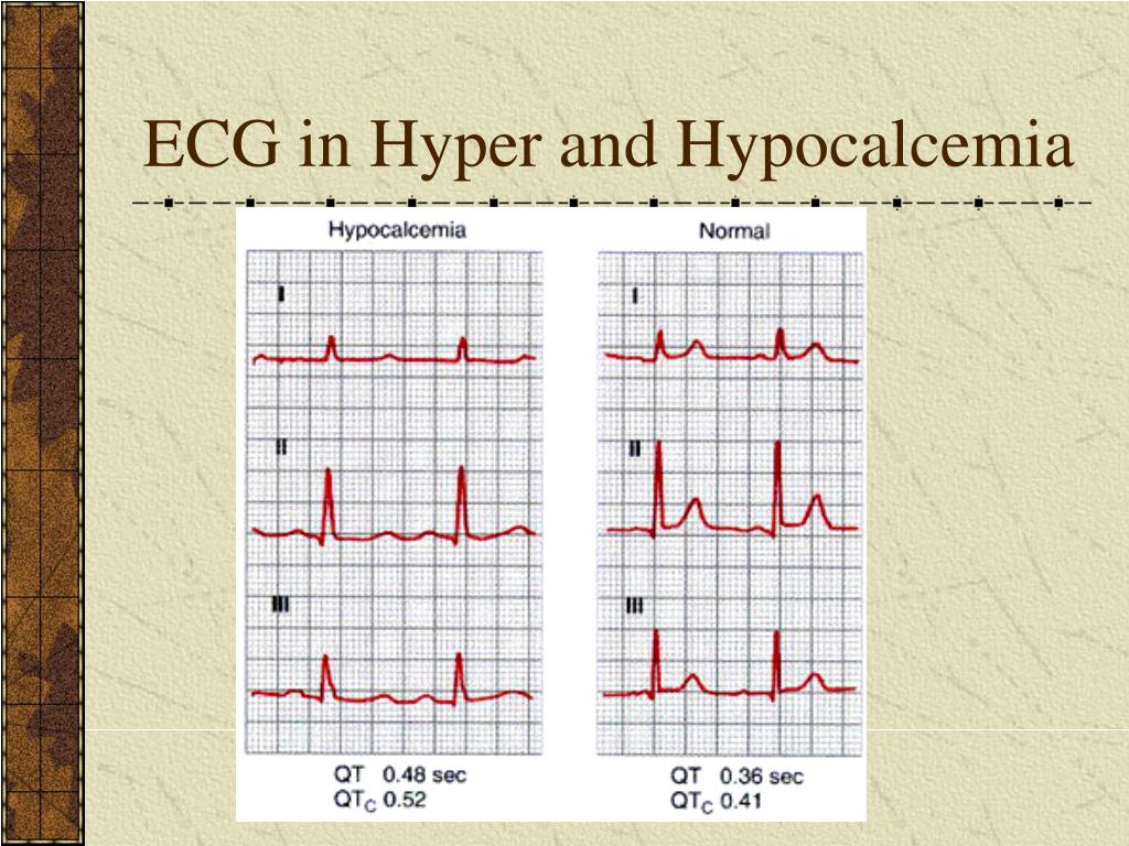 ECG in Hyper and Hypocalcemia