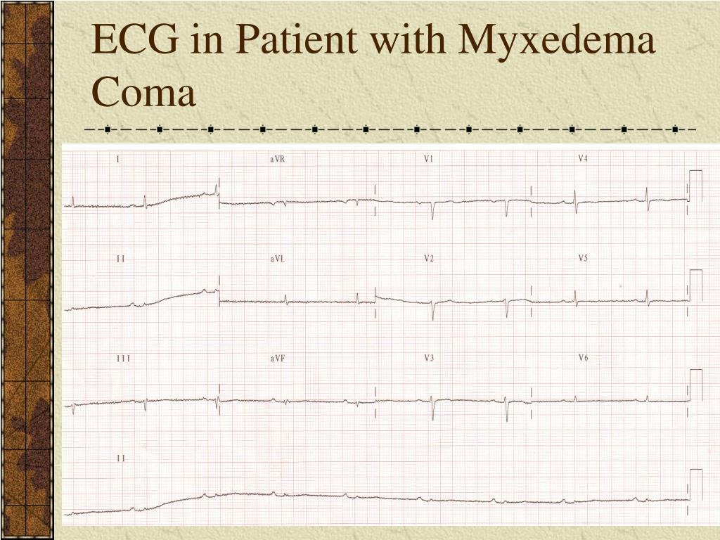 ECG in Patient with Myxedema Coma
