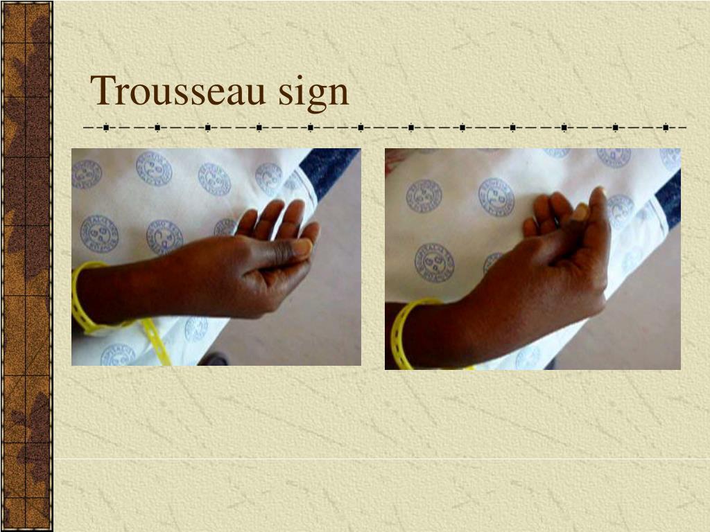 Trousseau sign