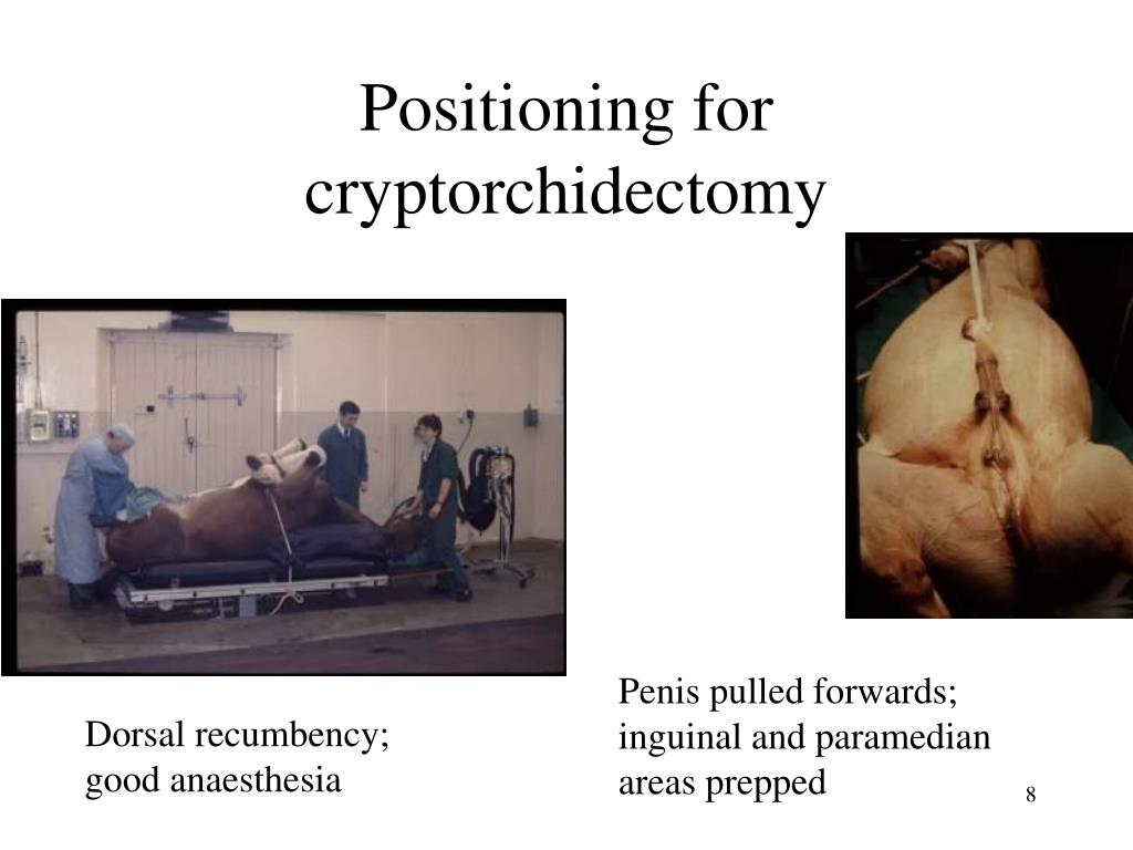 Positioning for cryptorchidectomy