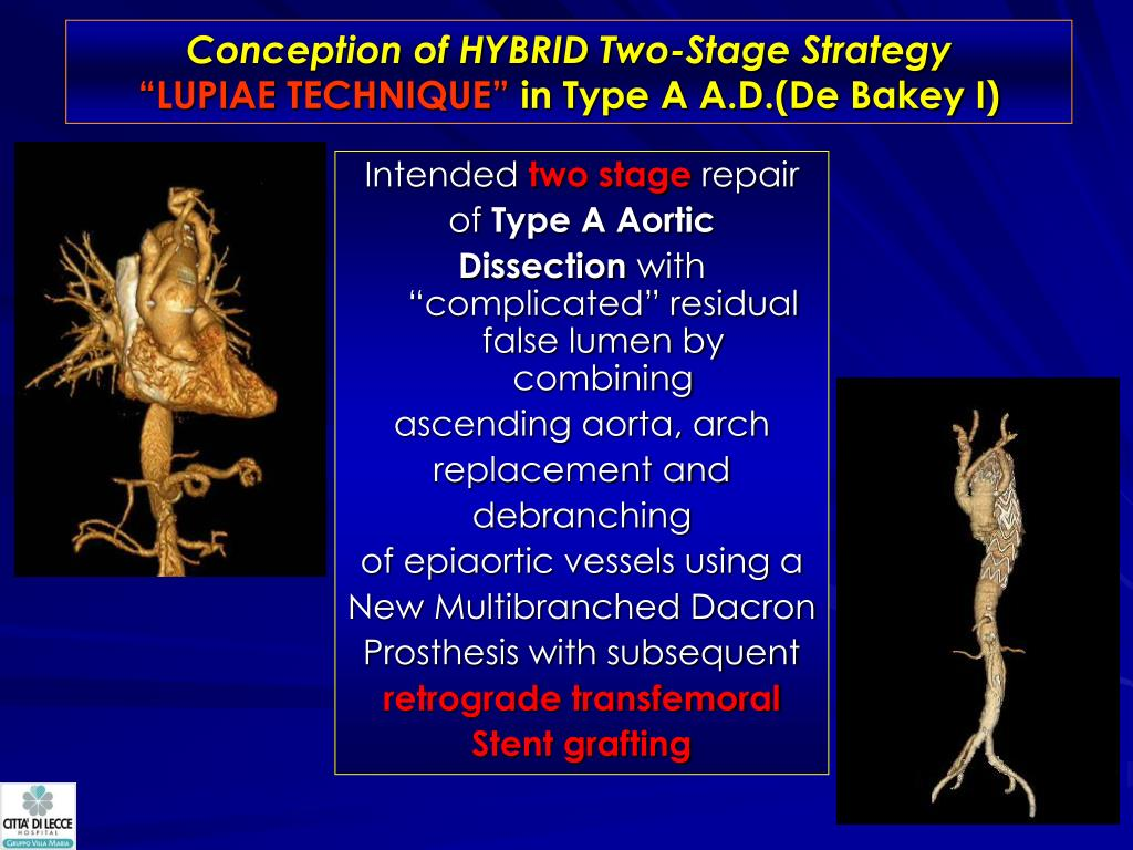Conception of HYBRID Two-Stage Strategy