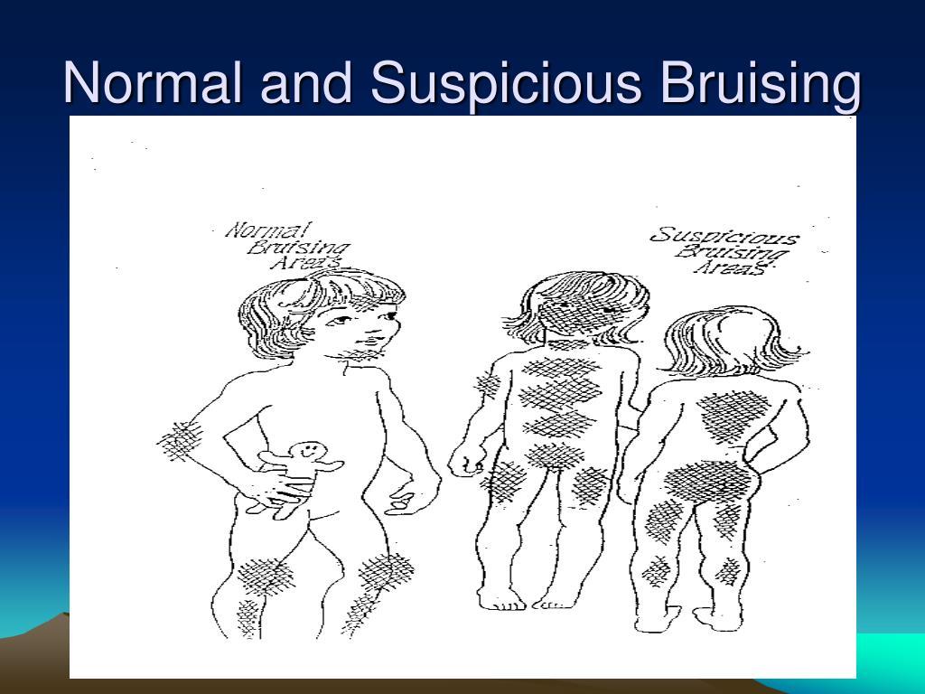 Normal and Suspicious Bruising