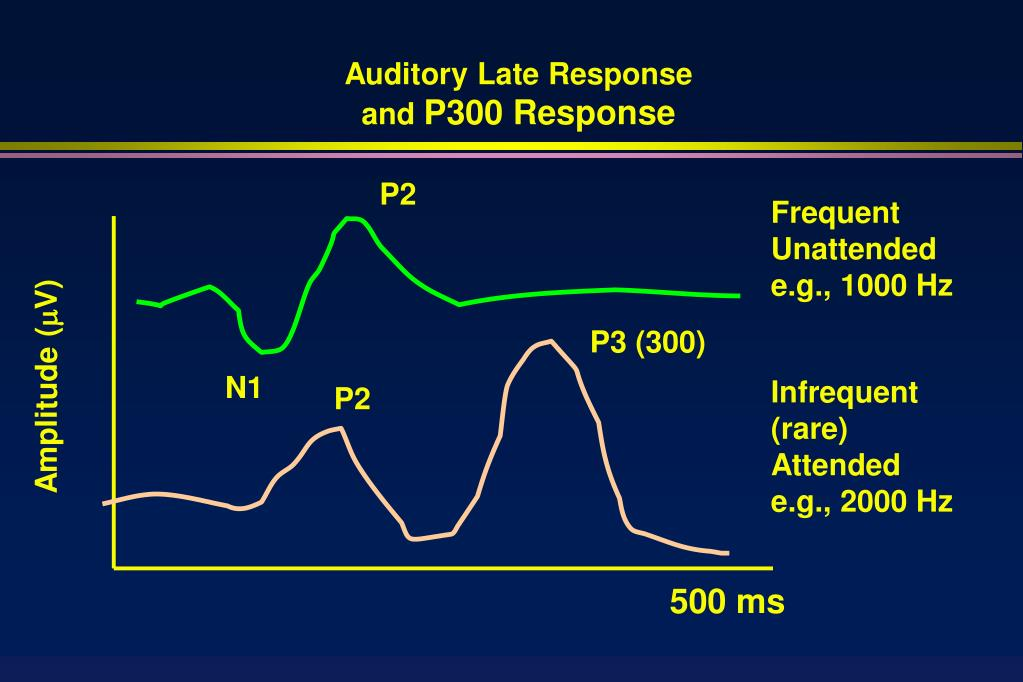 Auditory Late Response