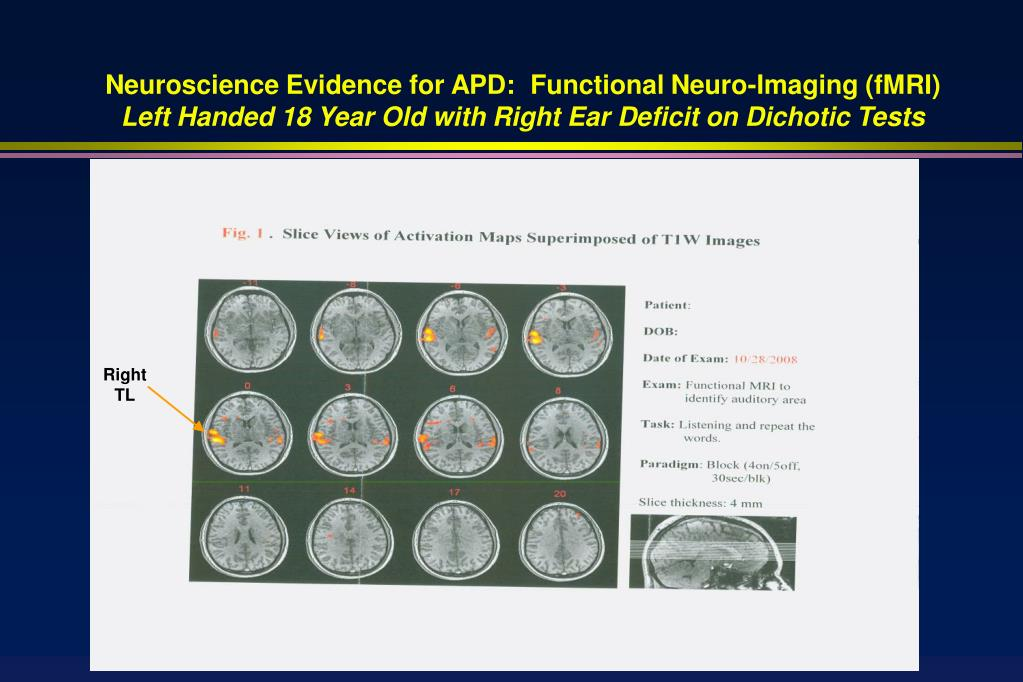 Neuroscience Evidence for APD:  Functional Neuro-Imaging (fMRI)