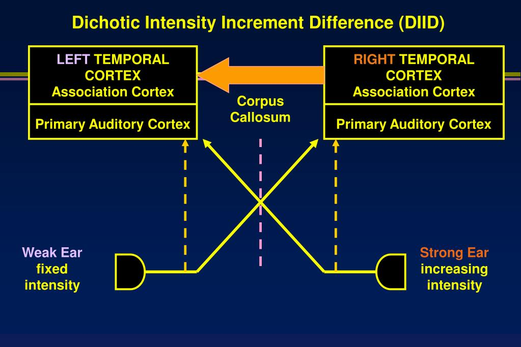 Dichotic Intensity Increment Difference (DIID)