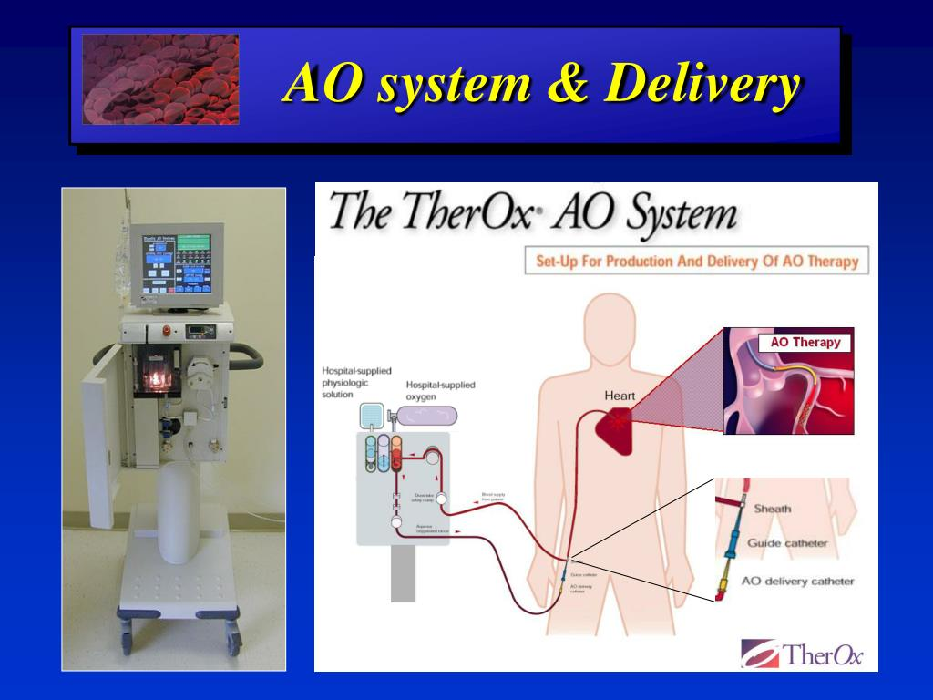 AO system & Delivery