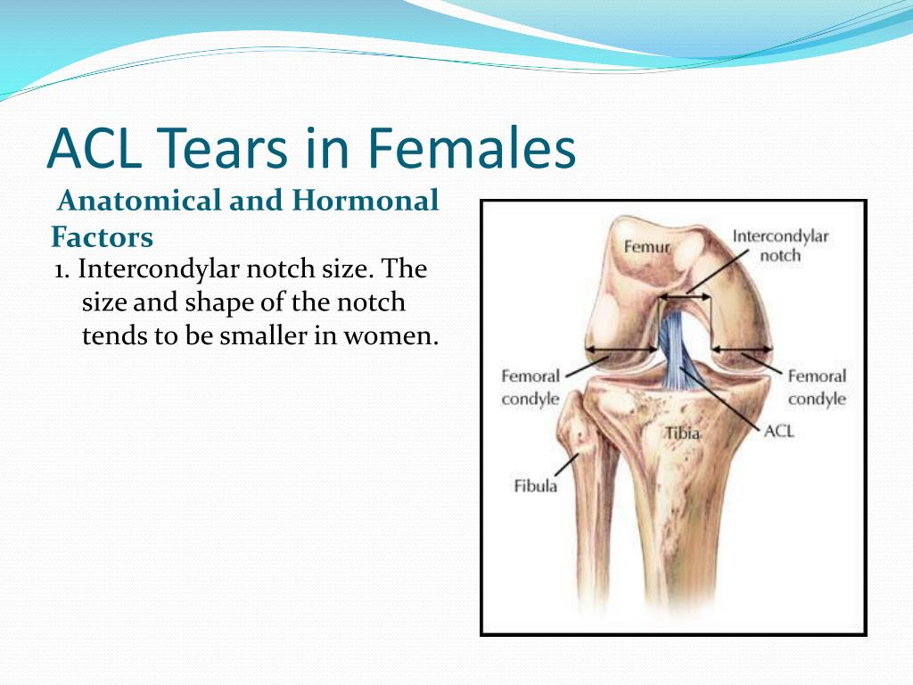 ACL Tears in Females