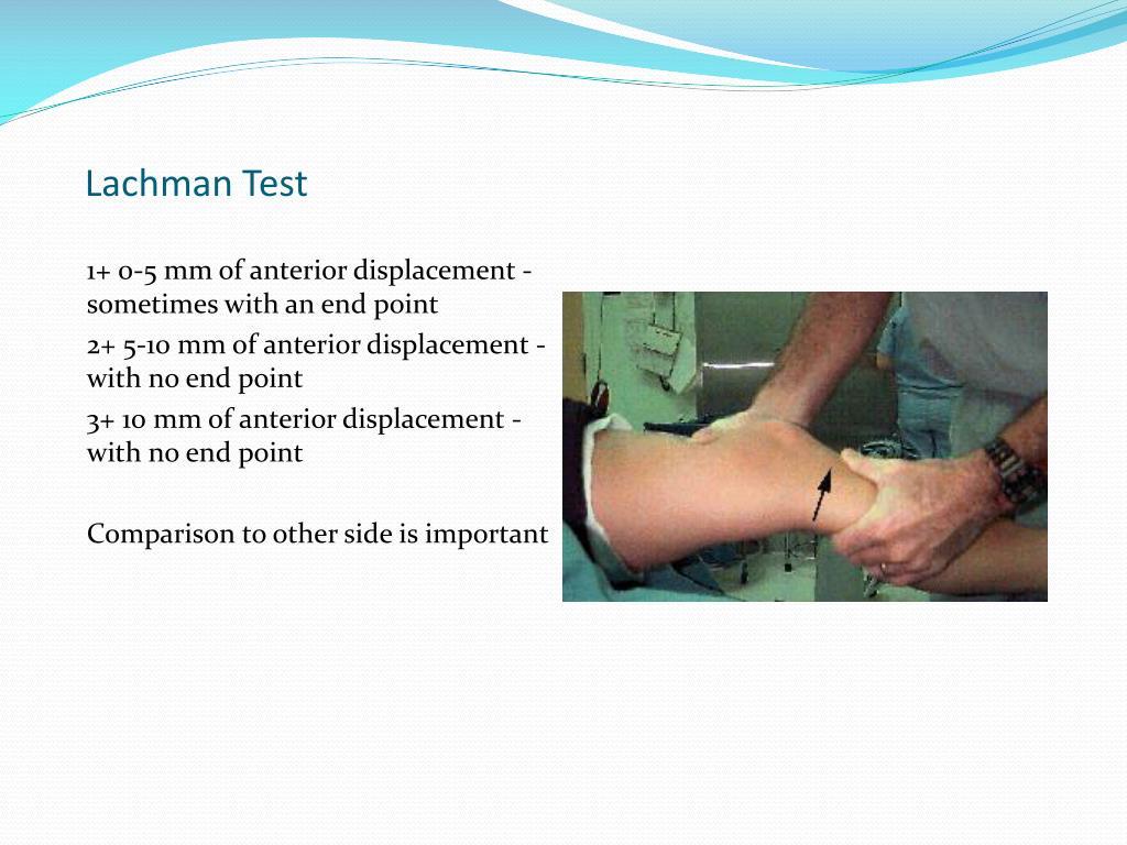 Lachman Test