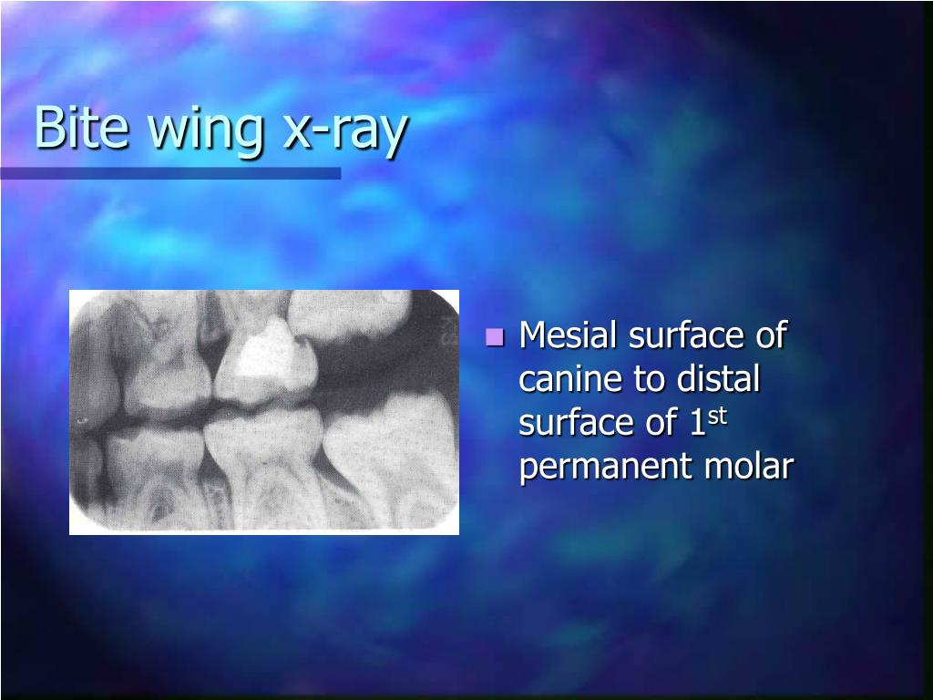 Bite wing x-ray