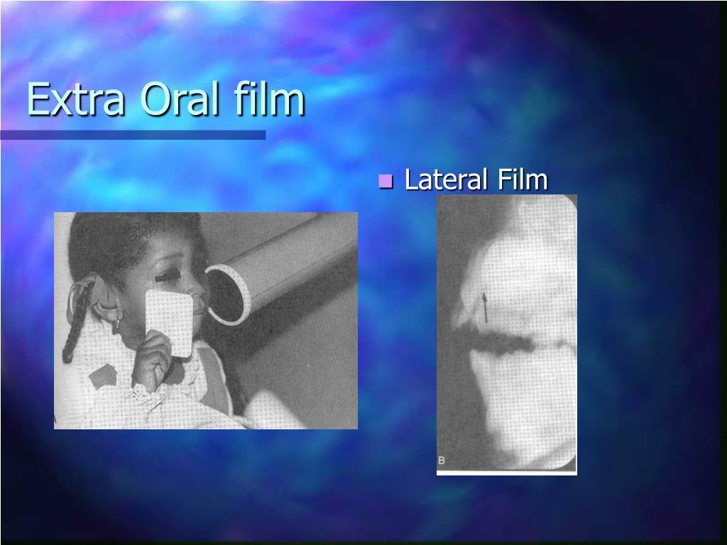 Extra Oral film