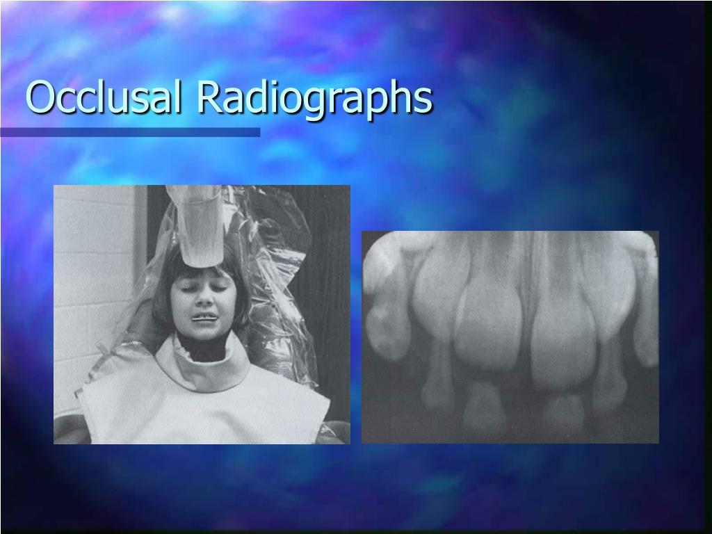 Occlusal Radiographs