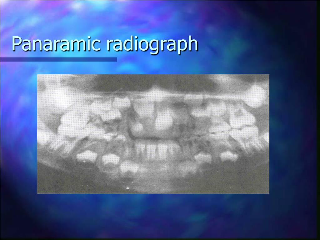 Panaramic radiograph