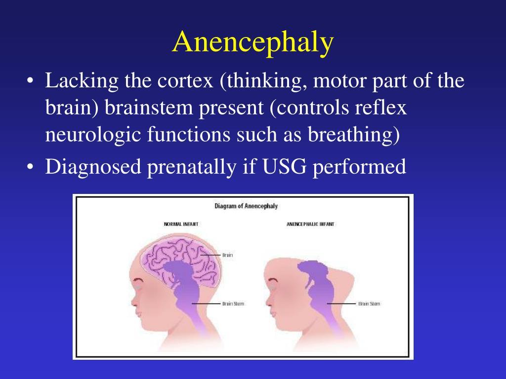 Anencephaly