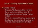acute coronary syndrome causes