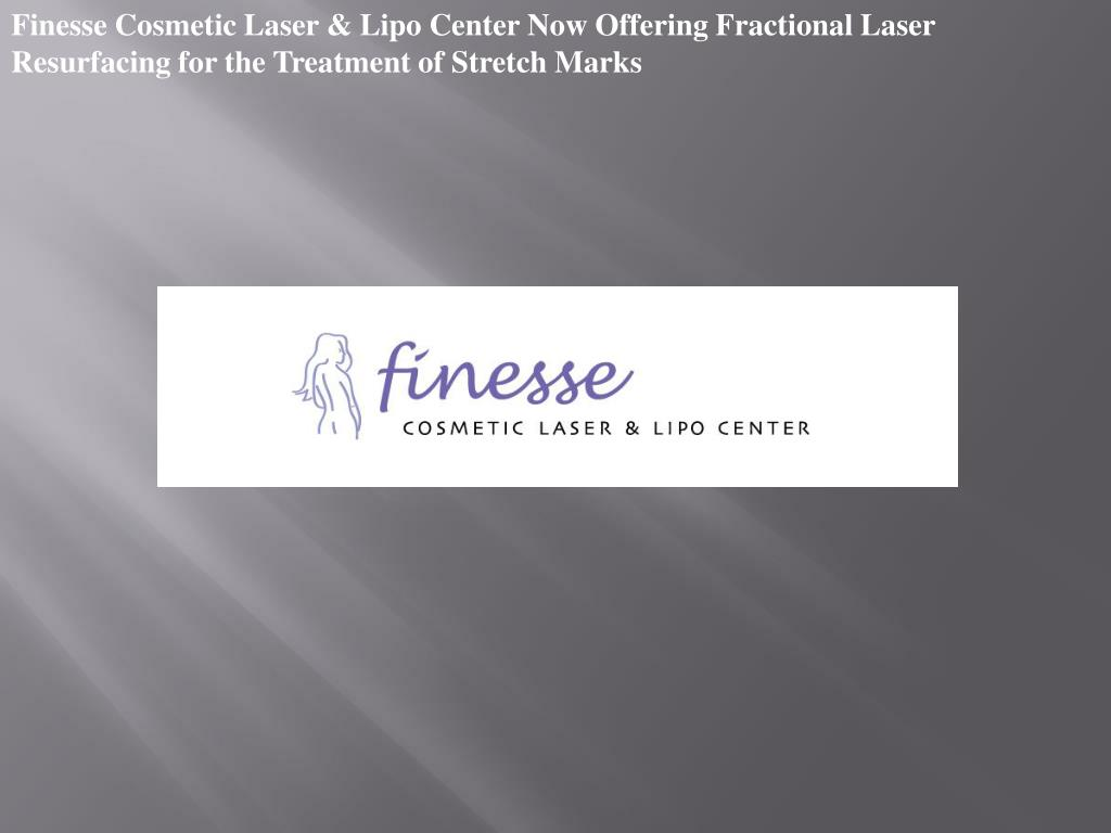 Finesse Cosmetic Laser & Lipo Center Now Offering Fractional Laser Resurfacing for the Treatment of Stretch Marks