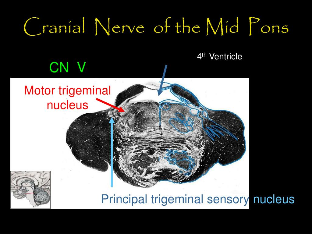 Cranial  Nerve  of the Mid  Pons