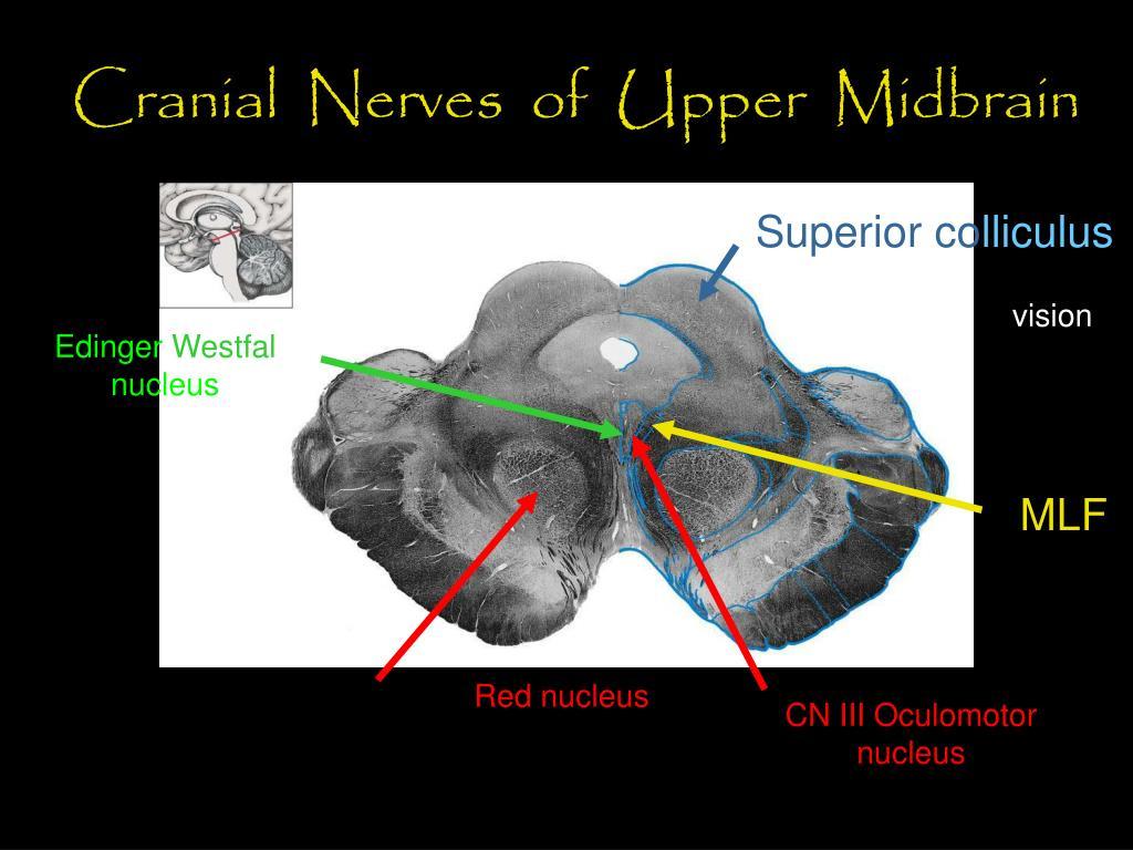 Cranial  Nerves  of  Upper  Midbrain
