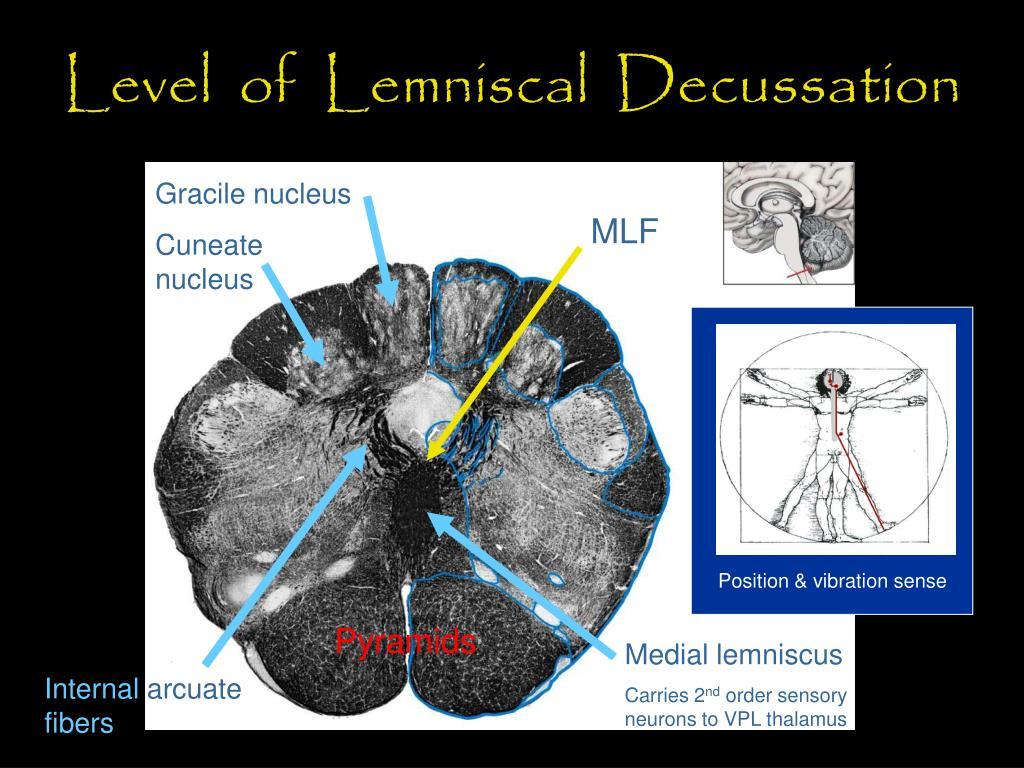 Level  of  Lemniscal  Decussation