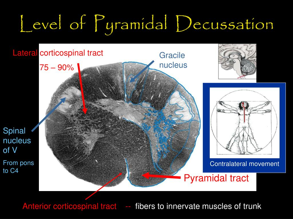Level  of  Pyramidal  Decussation