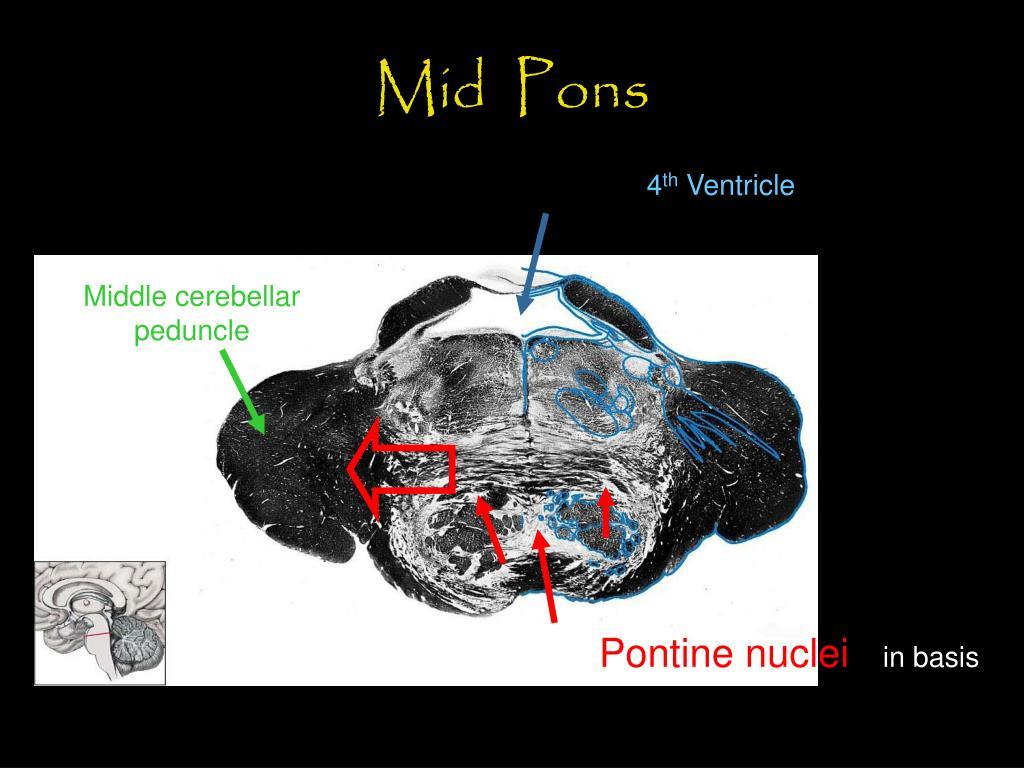 Mid  Pons