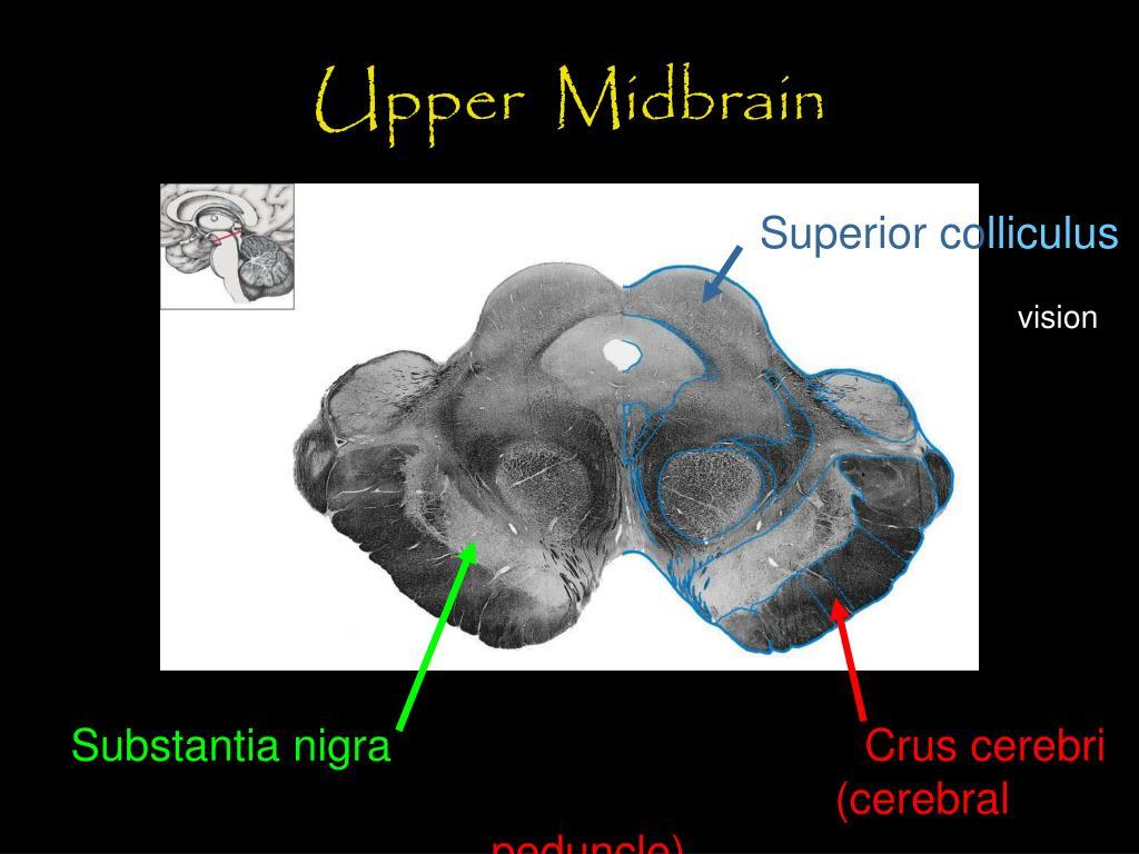 Upper  Midbrain
