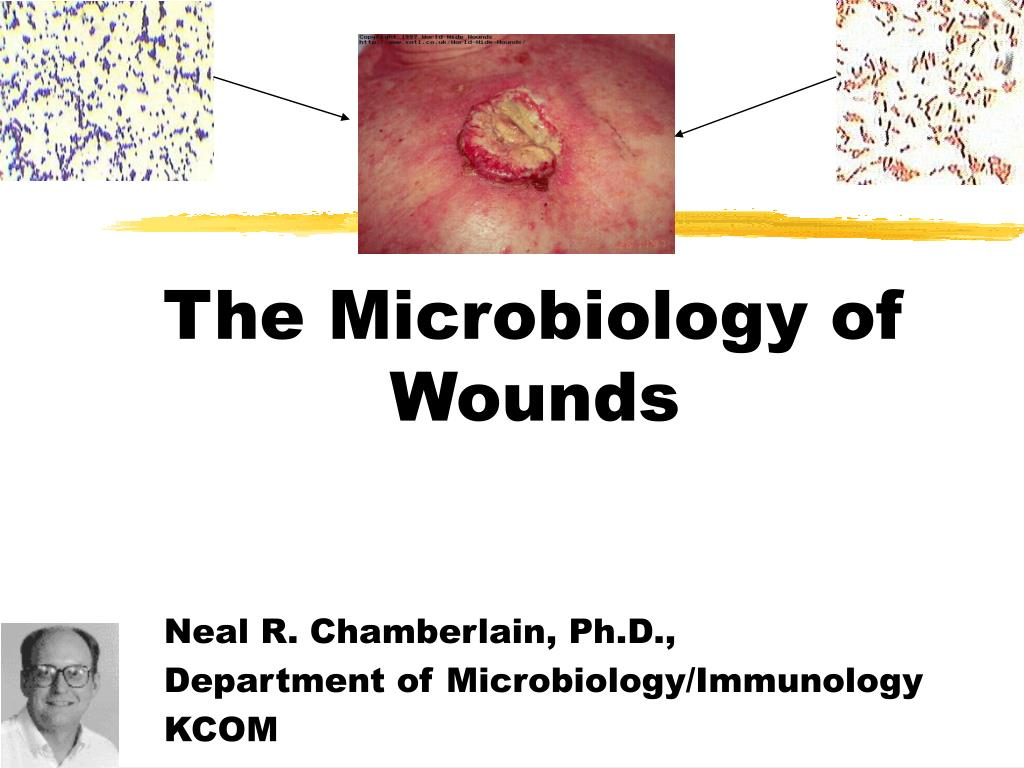 The Microbiology of Wounds