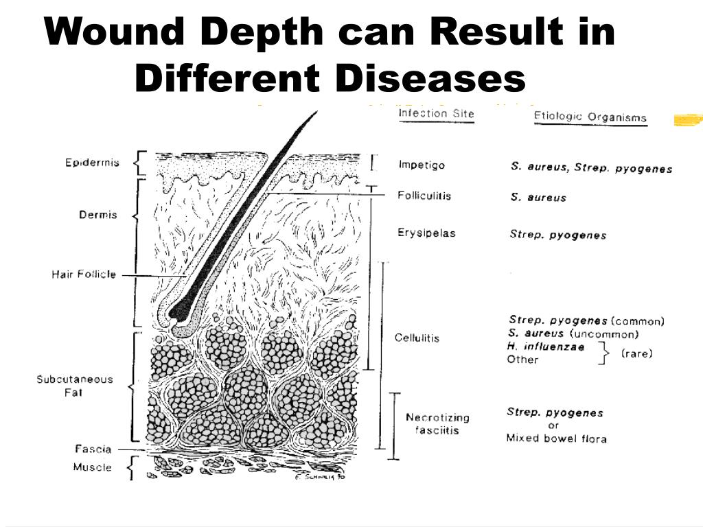 Wound Depth can Result in Different Diseases