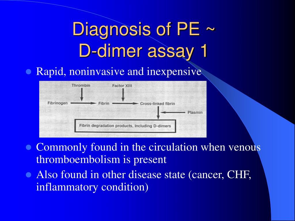 Diagnosis of PE ~