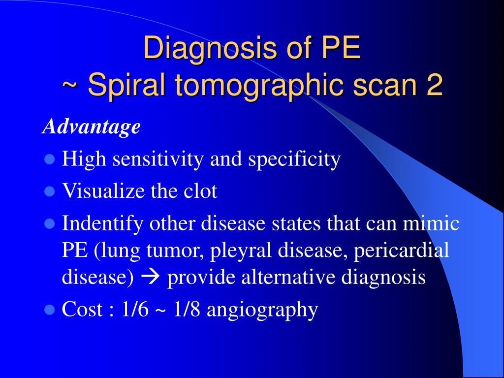 Diagnosis of PE