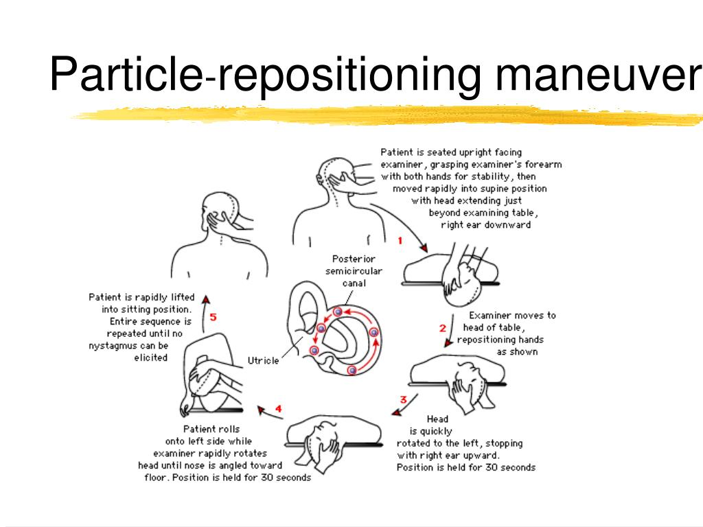 canalith repositioning procedure instructions