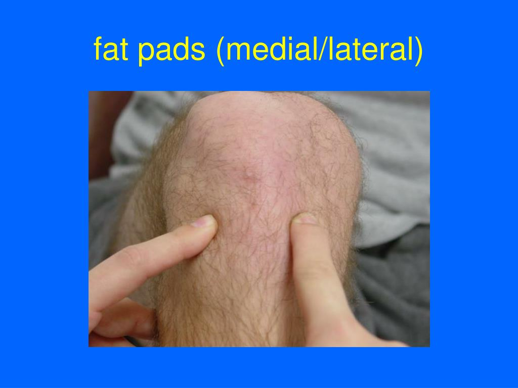 fat pads (medial/lateral)