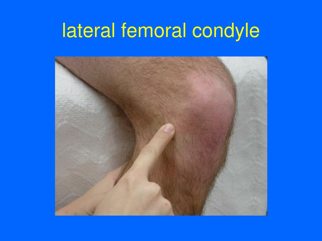 lateral femoral condyle