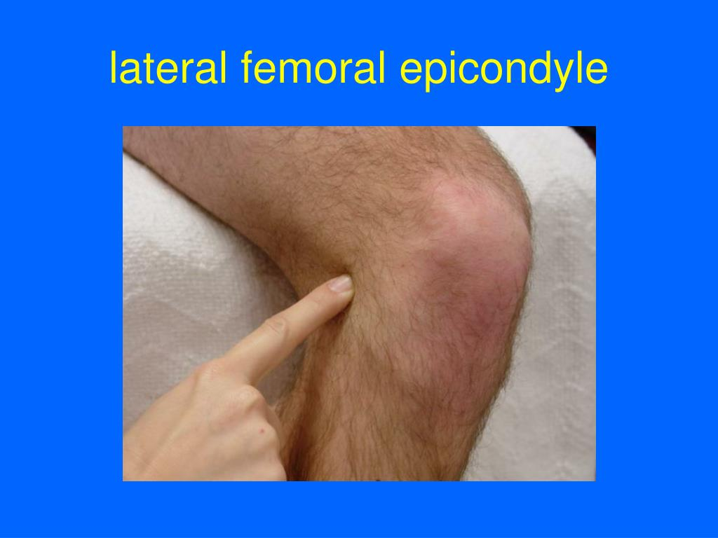lateral femoral epicondyle