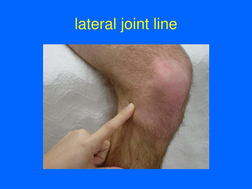 lateral joint line