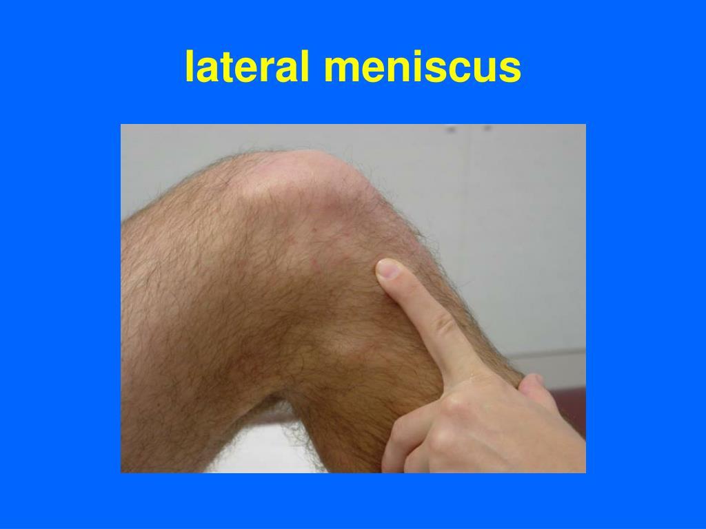 lateral meniscus