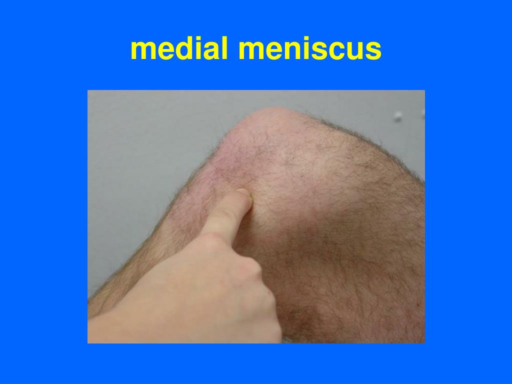 medial meniscus