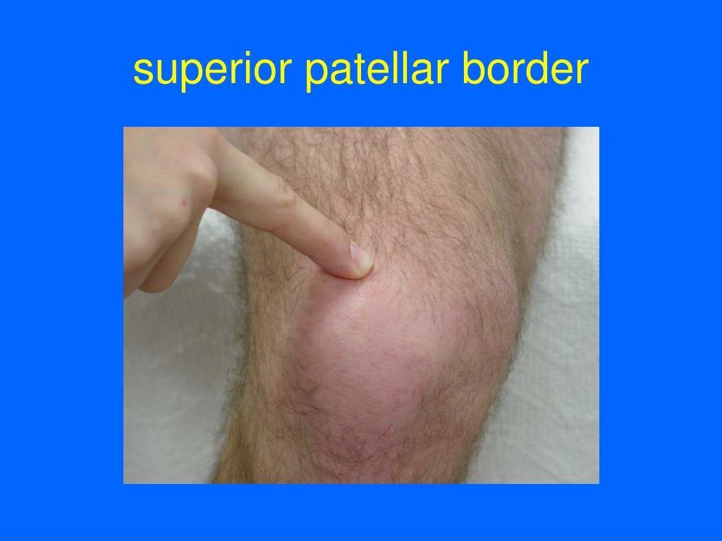 superior patellar border