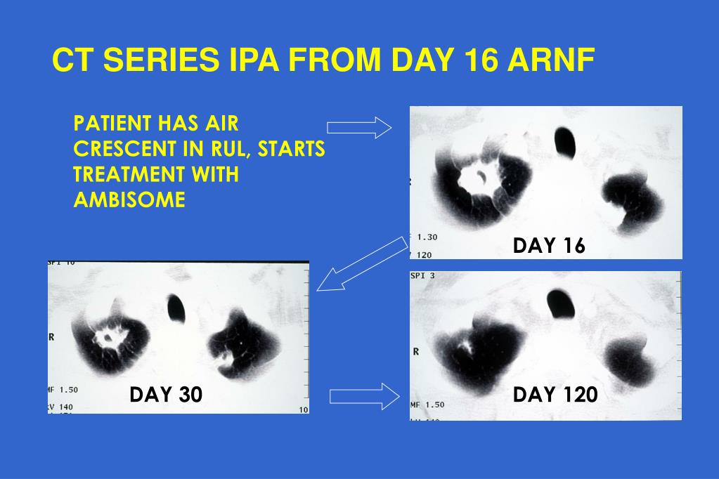 CT SERIES IPA FROM DAY 16 ARNF