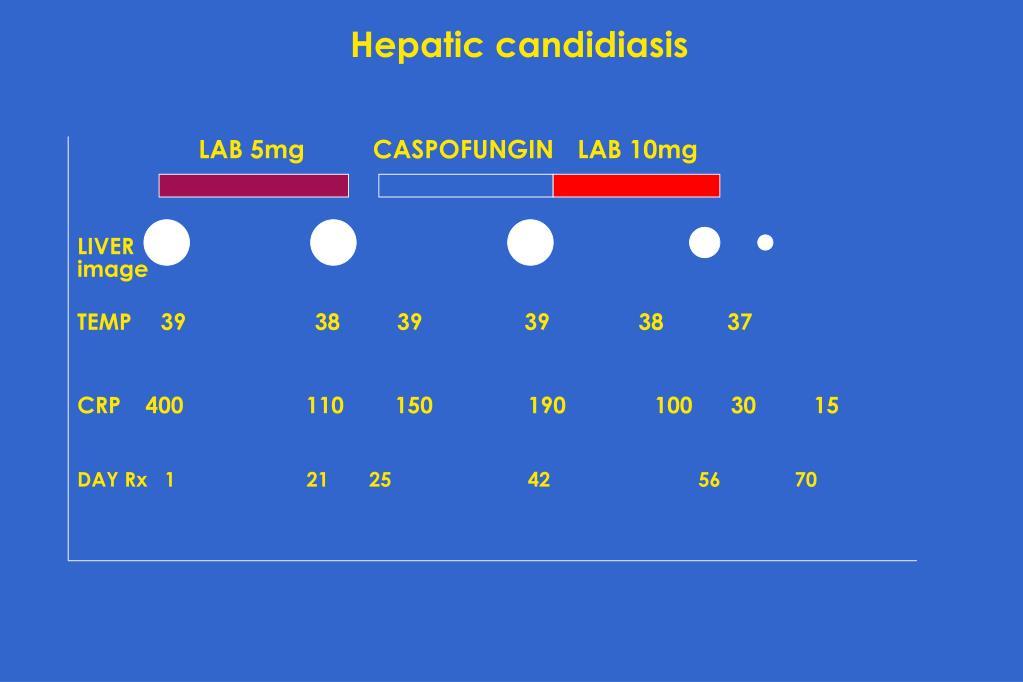Hepatic candidiasis