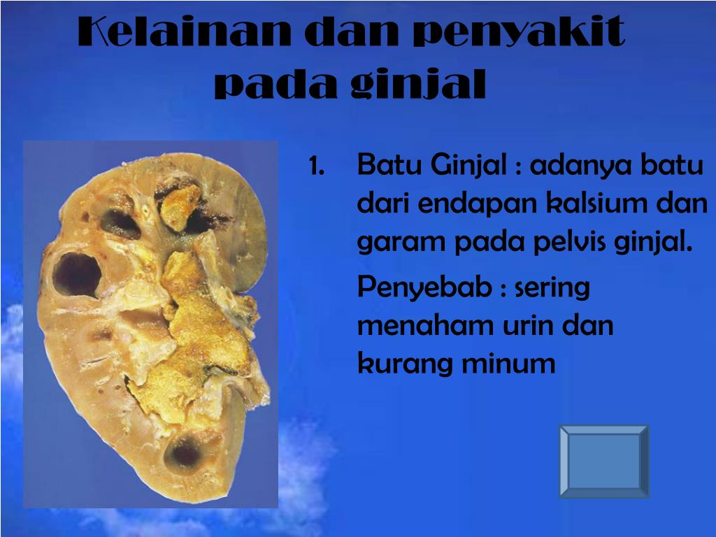 Kelainan dan penyakit pada ginjal
