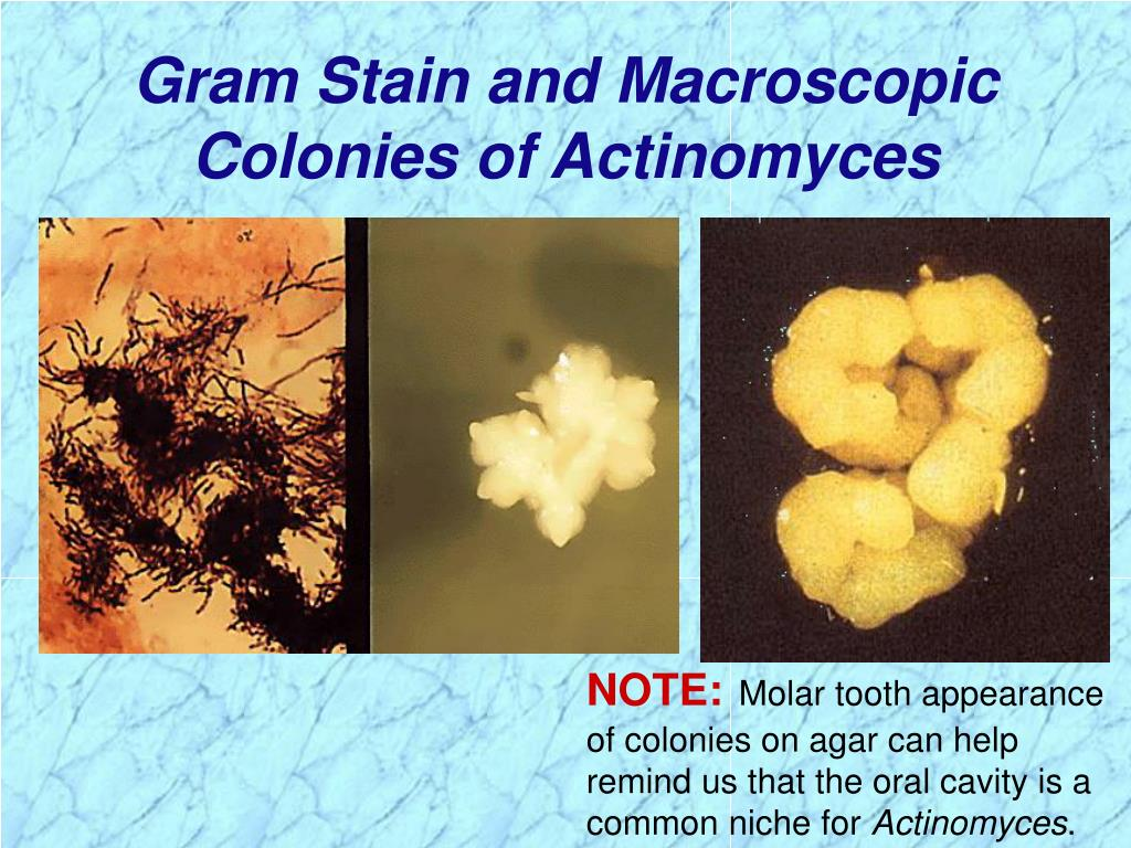 Gram Stain and Macroscopic Colonies of Actinomyces