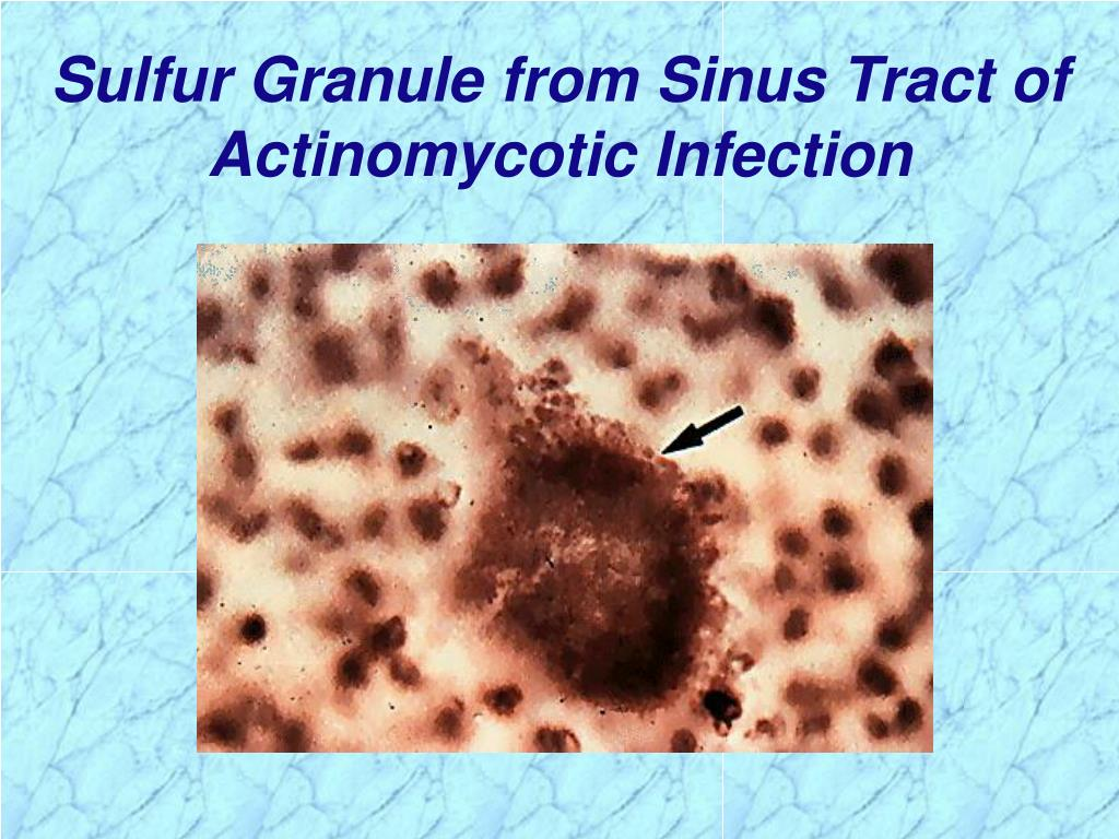 Sulfur Granule from Sinus Tract of Actinomycotic Infection
