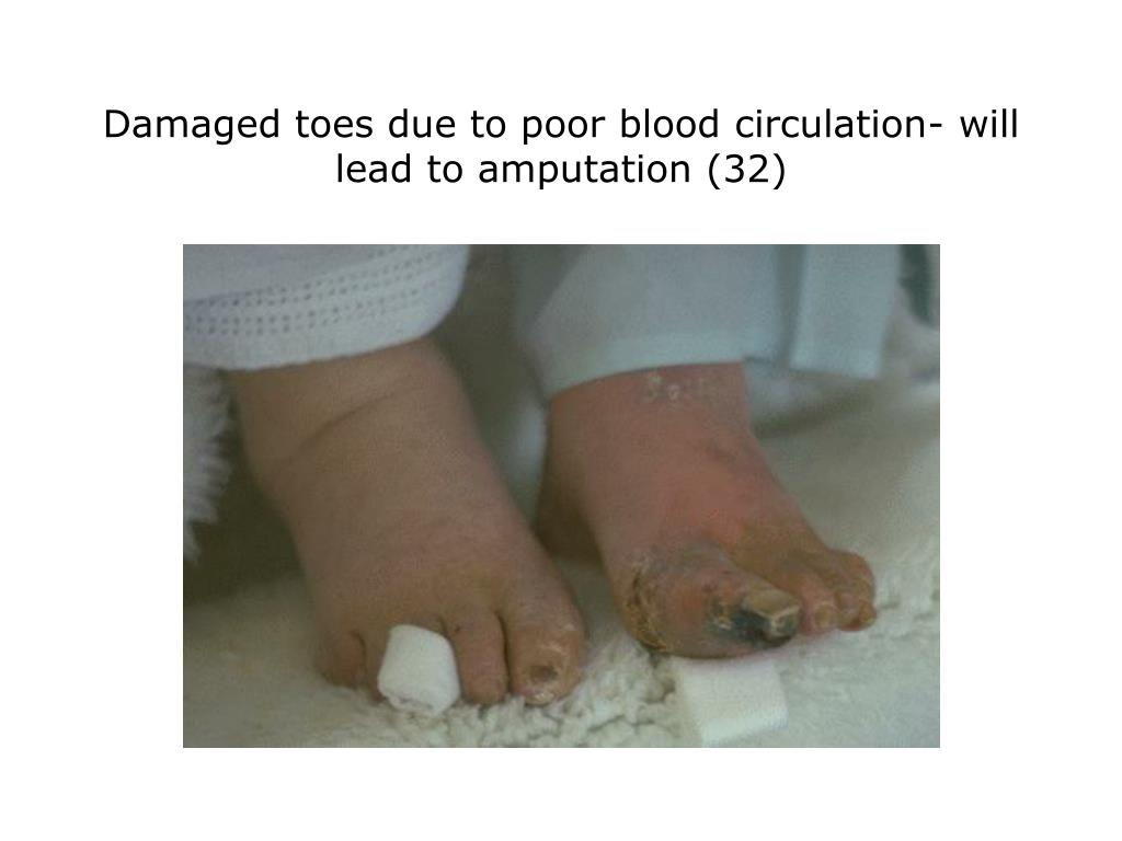 Damaged toes due to poor blood circulation- will lead to amputation (32)